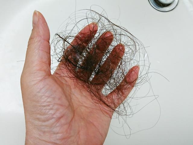 最近、抜け毛が多くなった?原因と対策その1